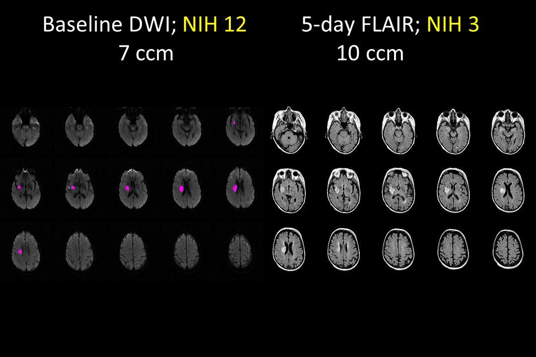 Baseline DWI; NIH 12 5-day FLAIR; NIH 3 7 ccm 10 ccm