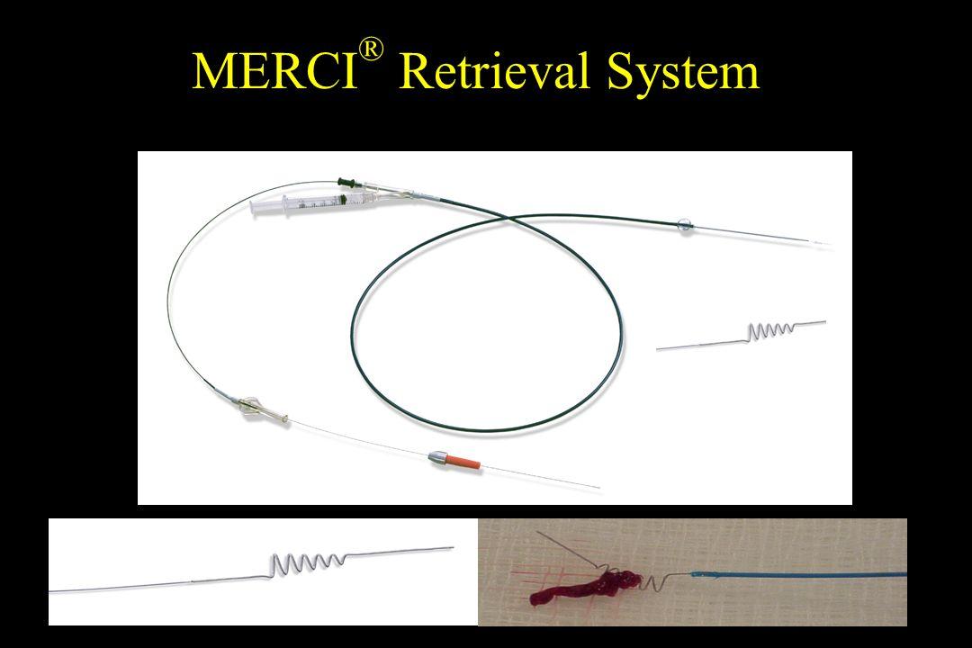 MERCI ® Retrieval System