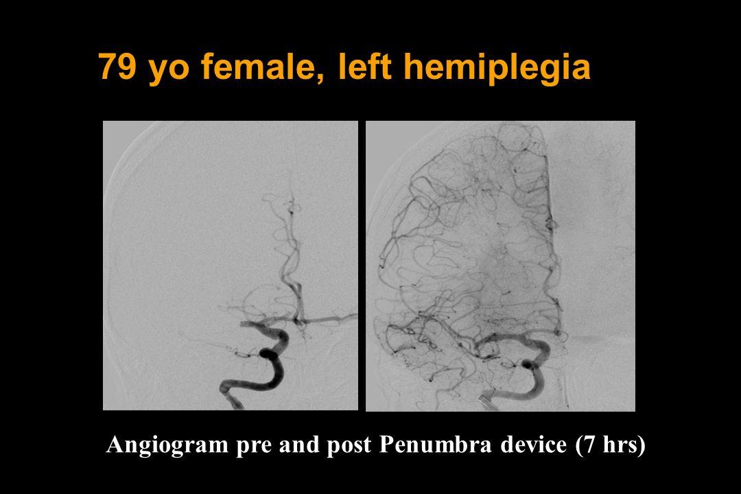 79 yo female, left hemiplegia Angiogram pre and post Penumbra device (7 hrs)