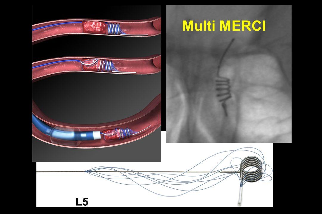 L5 Multi MERCI