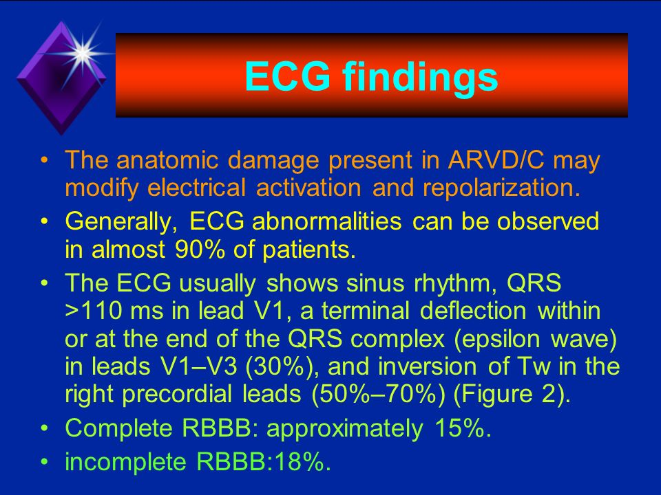 ECG findings The anatomic damage present in ARVD/C may modify electrical activation and repolarization. Generally, ECG abnormalities can be observed i