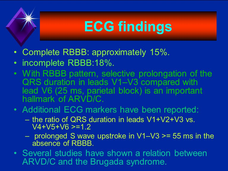ECG findings Complete RBBB: approximately 15%. incomplete RBBB:18%. With RBBB pattern, selective prolongation of the QRS duration in leads V1–V3 compa