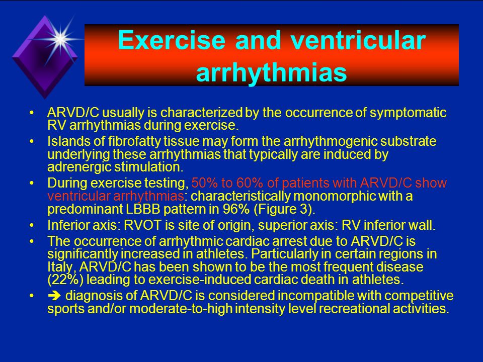 Exercise and ventricular arrhythmias ARVD/C usually is characterized by the occurrence of symptomatic RV arrhythmias during exercise. Islands of fibro