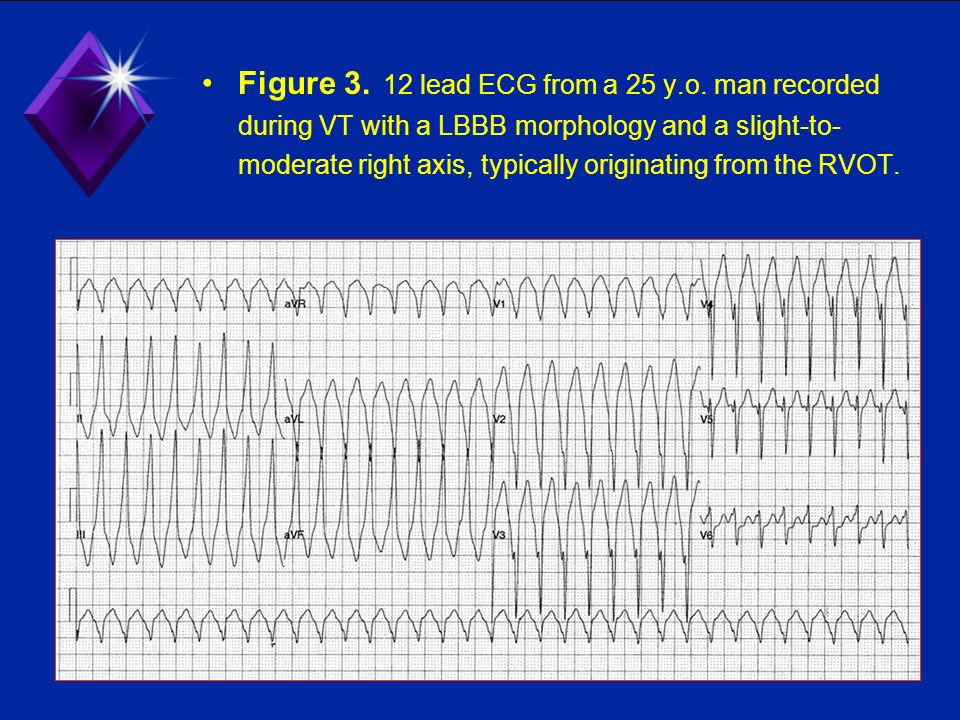 Figure 3. 12 lead ECG from a 25 y.o. man recorded during VT with a LBBB morphology and a slight-to- moderate right axis, typically originating from th