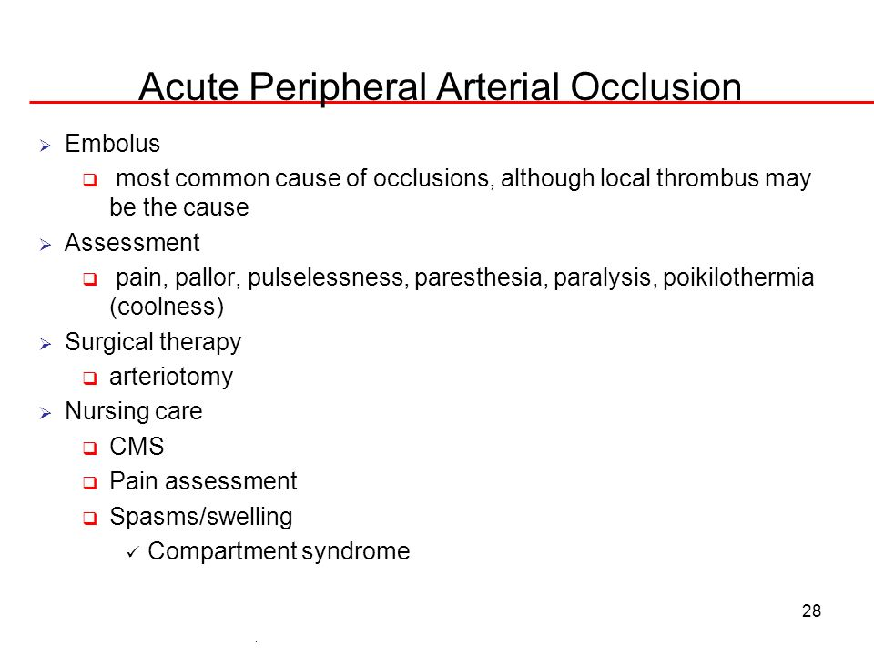 28 Acute Peripheral Arterial Occlusion Embolus most common cause of occlusions, although local thrombus may be the cause Assessment pain, pallor, puls
