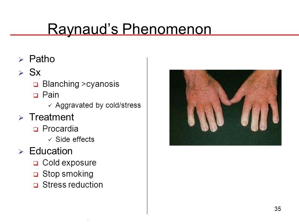 35 Raynauds Phenomenon Patho Sx Blanching >cyanosis Pain Aggravated by cold/stress Treatment Procardia Side effects Education Cold exposure Stop smoki