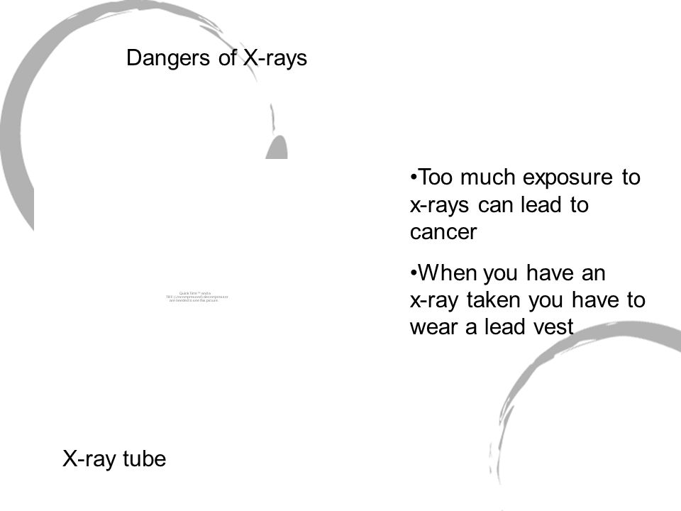 X-ray tube Too much exposure to x-rays can lead to cancer When you have an x-ray taken you have to wear a lead vest Dangers of X-rays