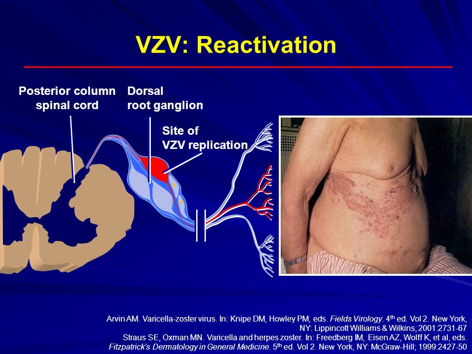 VZV: Reactivation Posterior column spinal cord Dorsal root ganglion Site of VZV replication Arvin AM. Varicella-zoster virus. In: Knipe DM, Howley PM,