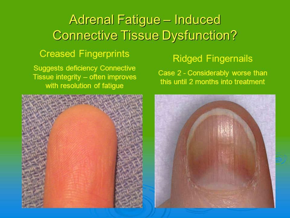 Adrenal Fatigue – Induced Connective Tissue Dysfunction? Ridged Fingernails Case 2 - Considerably worse than this until 2 months into treatment Crease