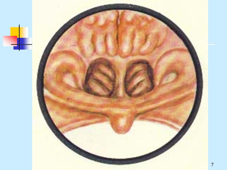 18.Clinical Presentation Symptoms Conductive Hearing Loss, Earache, Ear fullness, Tinnitus.