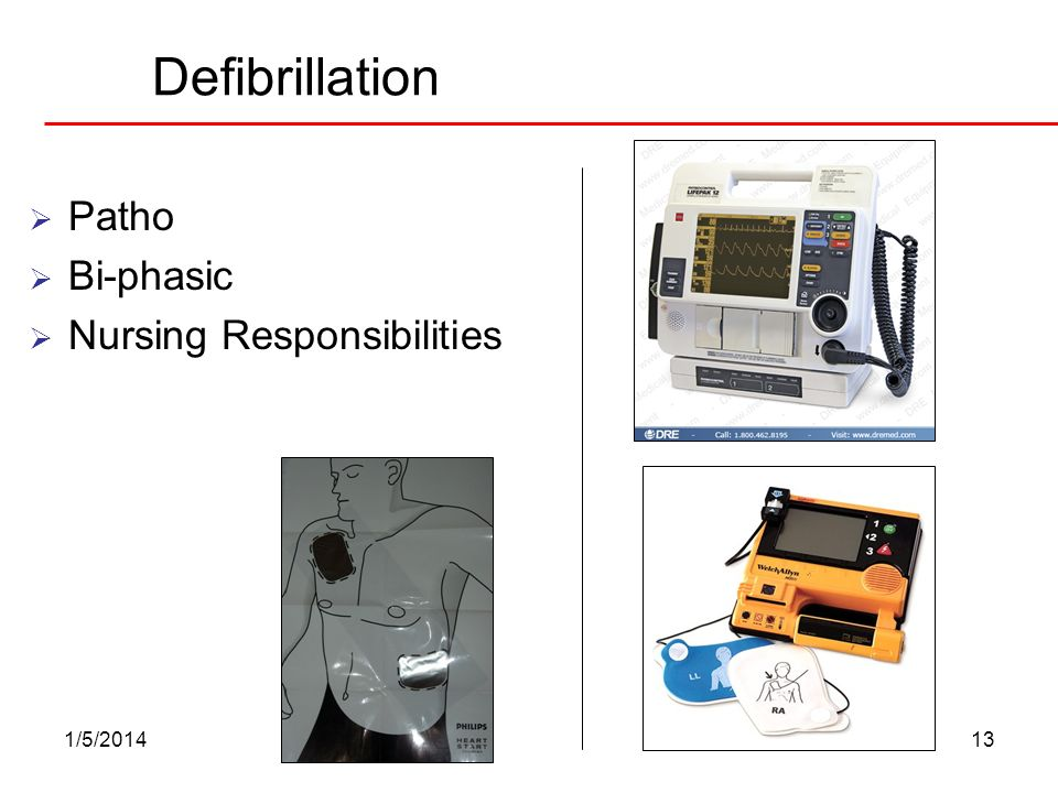 1/5/201413 Defibrillation Patho Bi-phasic Nursing Responsibilities