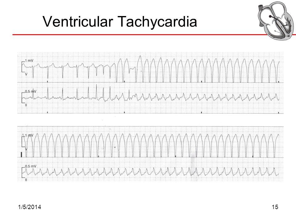 1/5/201415 Ventricular Tachycardia