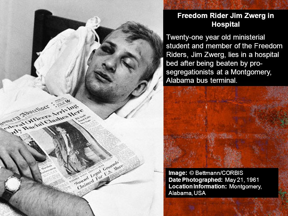 Freedom Rider Jim Zwerg in Hospital Twenty-one year old ministerial student and member of the Freedom Riders, Jim Zwerg, lies in a hospital bed after