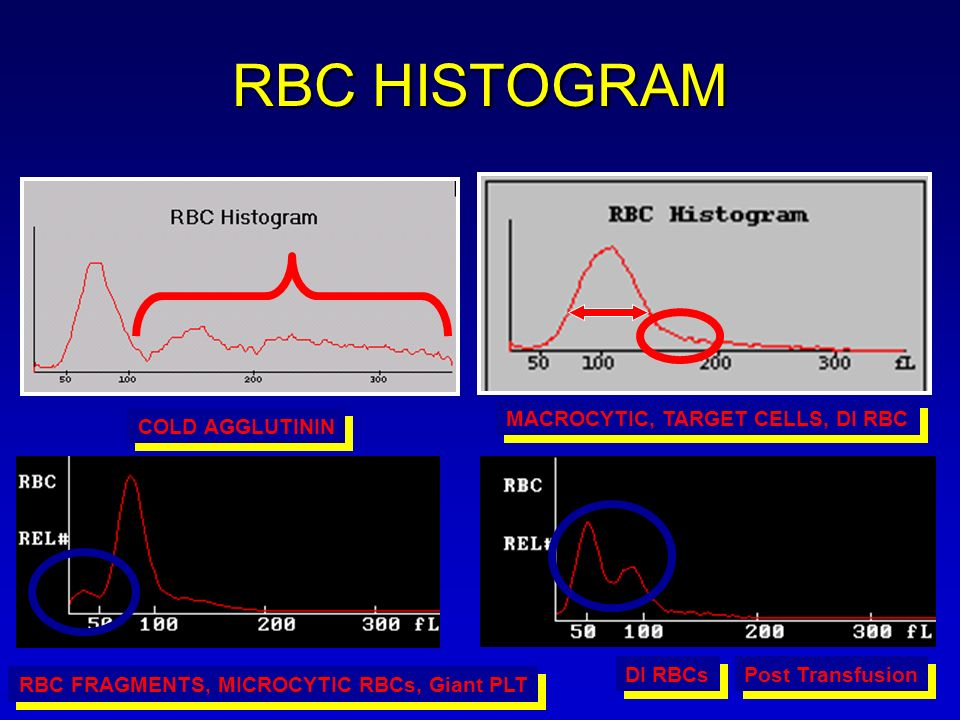 RBC HISTOGRAM RBC FRAGMENTS, MICROCYTIC RBCs, Giant PLT DI RBCs MACROCYTIC, TARGET CELLS, DI RBC COLD AGGLUTININ Post Transfusion