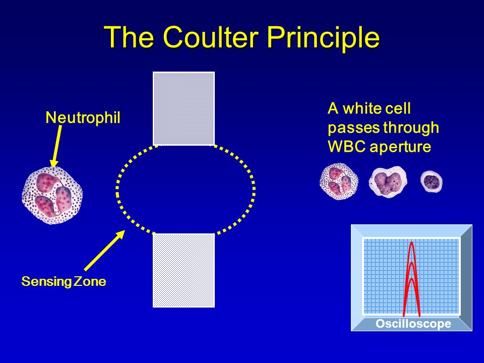 Sensing Zone Neutrophil Oscilloscope The Coulter Principle A white cell passes through WBC aperture