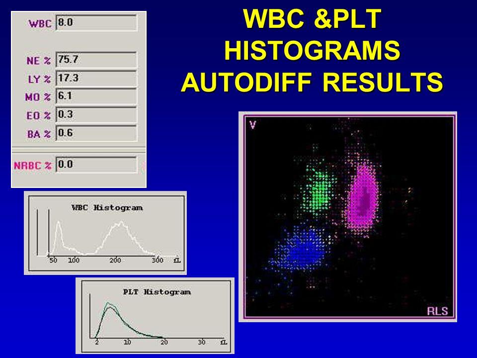 WBC &PLT HISTOGRAMS AUTODIFF RESULTS
