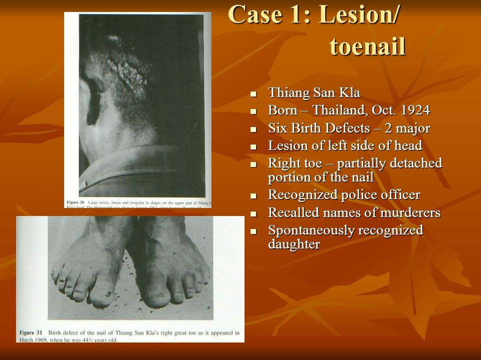 Case 1: Lesion/ toenail Case 1: Lesion/ toenail Thiang San Kla Thiang San Kla Born – Thailand, Oct. 1924 Born – Thailand, Oct. 1924 Six Birth Defects