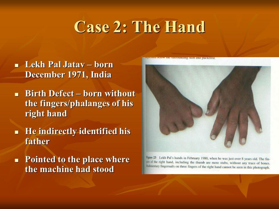 Case 2: The Hand Lekh Pal Jatav – born December 1971, India Lekh Pal Jatav – born December 1971, India Birth Defect – born without the fingers/phalang