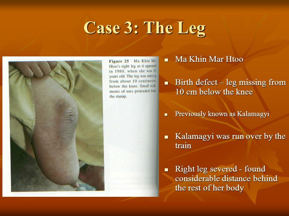 Case 3: The Leg Ma Khin Mar Htoo Ma Khin Mar Htoo Birth defect – leg missing from 10 cm below the knee Birth defect – leg missing from 10 cm below the