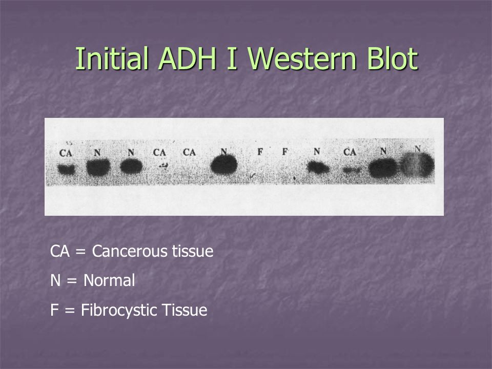 Initial ADH I Western Blot CA = Cancerous tissue N = Normal F = Fibrocystic Tissue