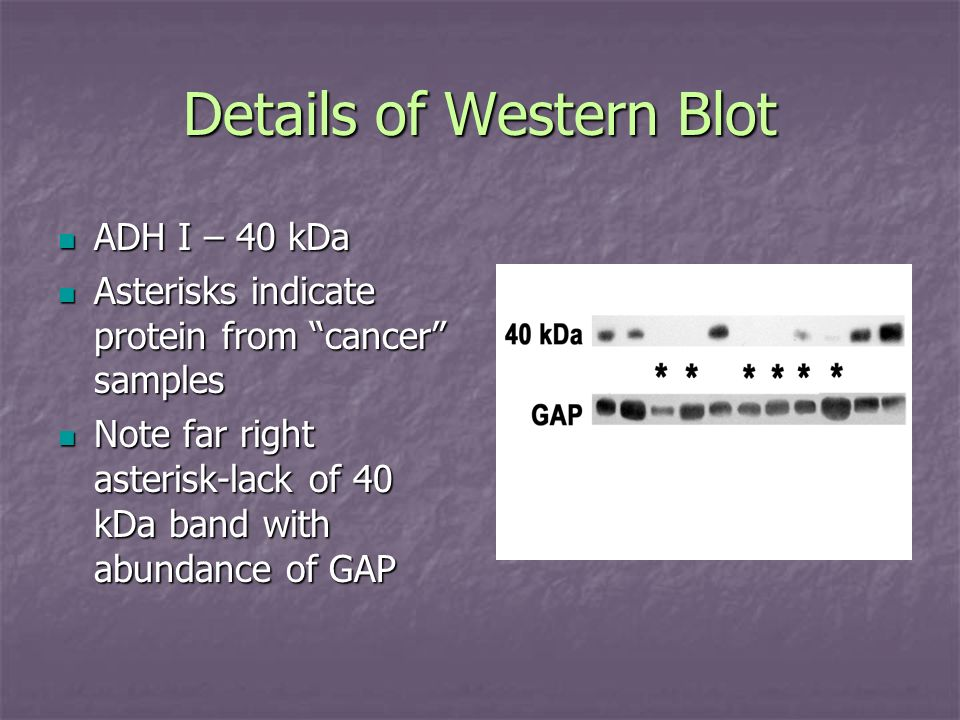 Details of Western Blot ADH I – 40 kDa ADH I – 40 kDa Asterisks indicate protein from cancer samples Asterisks indicate protein from cancer samples No