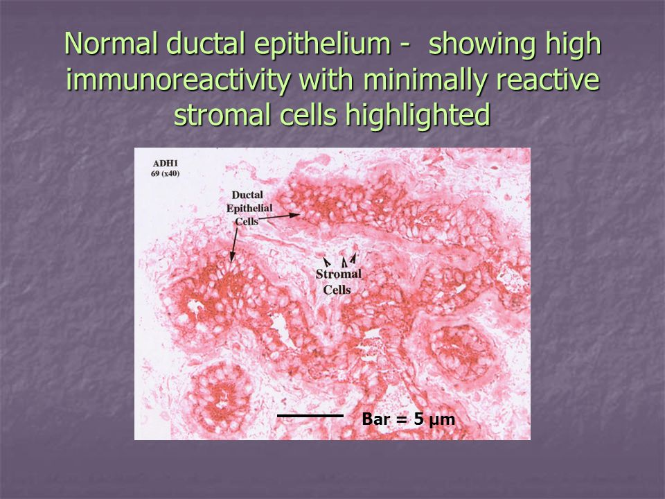 Normal ductal epithelium - showing high immunoreactivity with minimally reactive stromal cells highlighted Bar = 5 µm