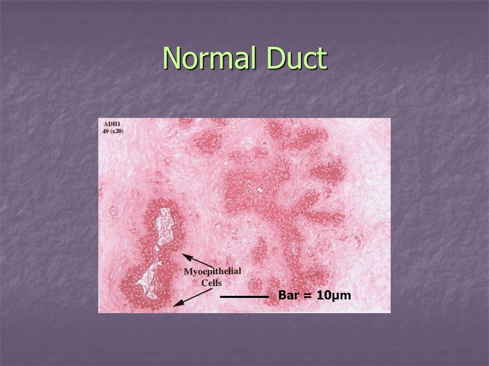 Normal Duct Bar = 10µm