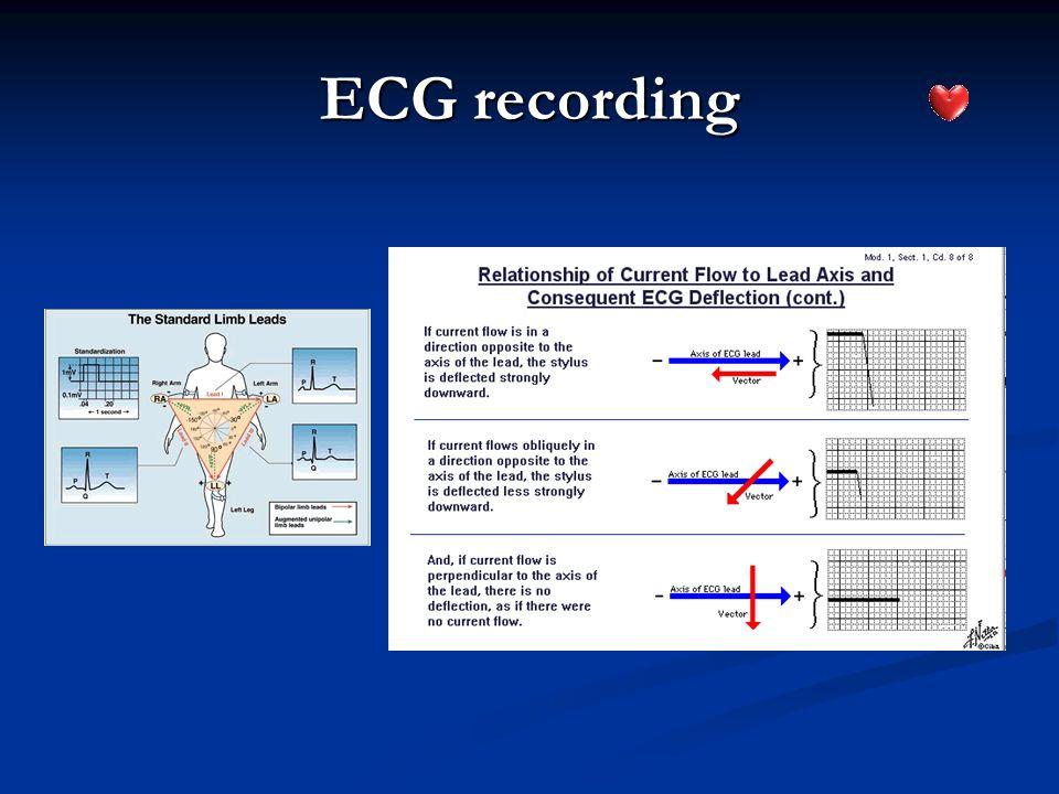 ECG recording