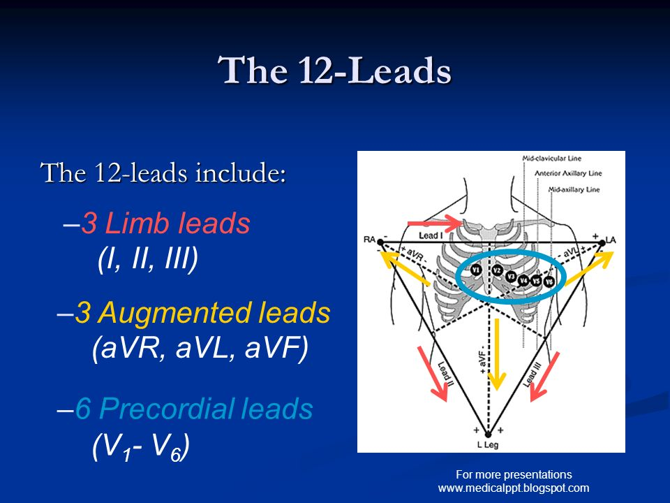 For more presentations www.medicalppt.blogspot.com The 12-Leads The 12-leads include: –3 Limb leads (I, II, III) –3 Augmented leads (aVR, aVL, aVF) –6