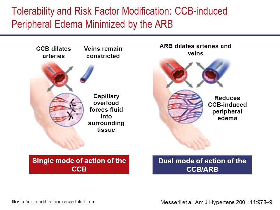 Tolerability and Risk Factor Modification: CCB-induced Peripheral Edema Minimized by the ARB Single mode of action of the CCB Dual mode of action of the CCB/ARB Illustration modified from www.lotrel.com ARB dilates arteries and veins Reduces CCB-induced peripheral edema Capillary overload forces fluid into surrounding tissue CCB dilates arteries Veins remain constricted Messerli et al.