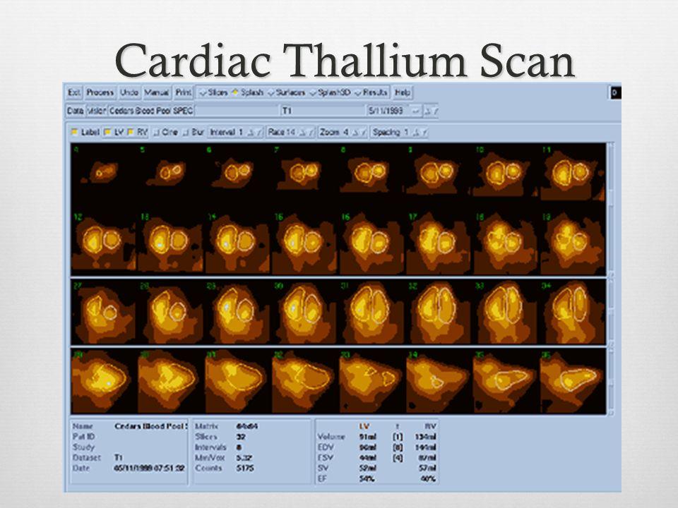Cardiac Thallium Scan