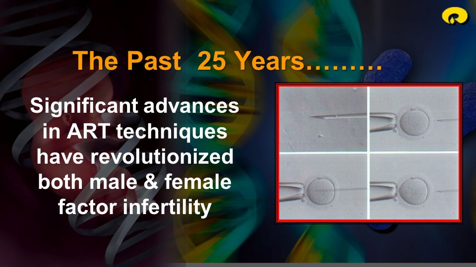 The Past 25 Years……… Significant advances in ART techniques have revolutionized both male & female factor infertility