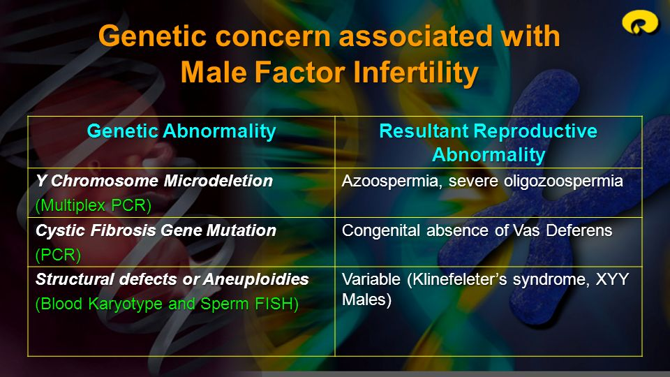 Genetic concern associated with Male Factor Infertility Genetic Abnormality Resultant Reproductive Abnormality Y Chromosome Microdeletion (Multiplex P