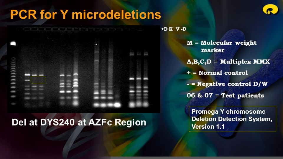 PCR for Y microdeletions M = Molecular weight marker A,B,C,D = Multiplex MMX + = Normal control - = Negative control D/W 06 & 07 = Test patients M +A