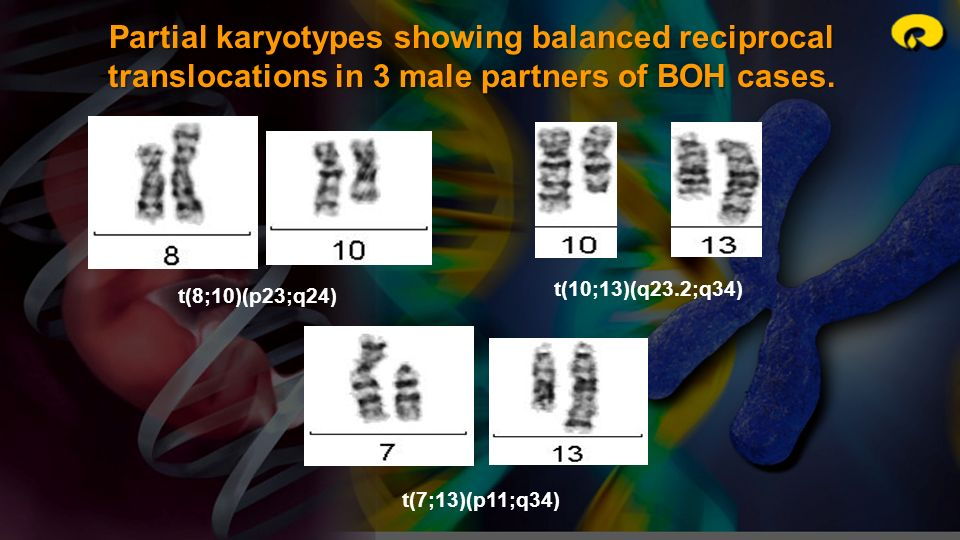 Partial karyotypes showing balanced reciprocal translocations in 3 male partners of BOH cases. t(8;10)(p23;q24) t(10;13)(q23.2;q34) t(7;13)(p11;q34)