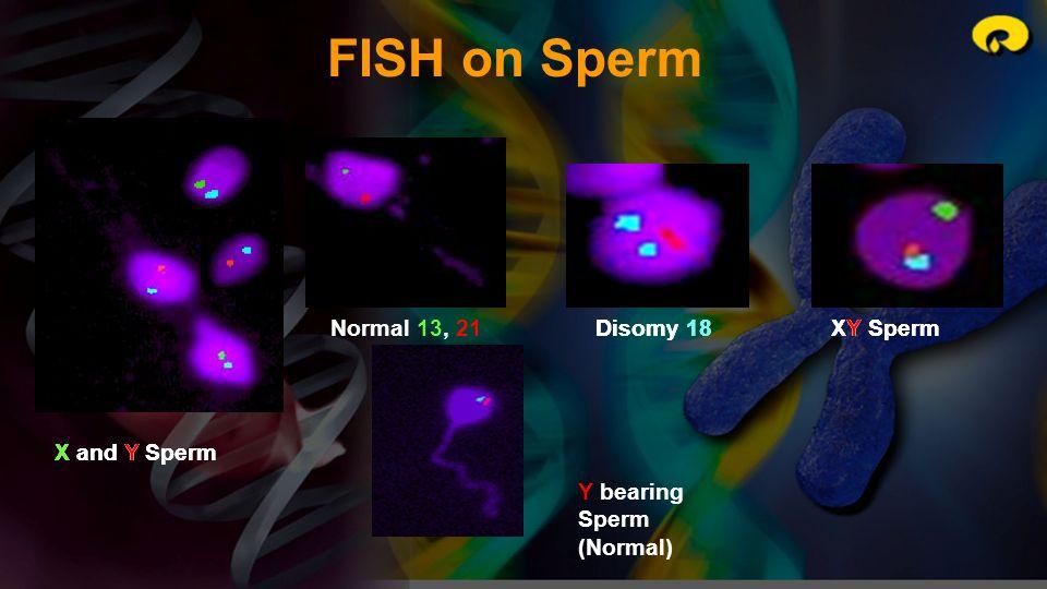 X and Y Sperm Normal 13, 21Disomy 18XY Sperm X and Y Sperm Disomy 18XY Sperm Y bearing Sperm (Normal) FISH on Sperm