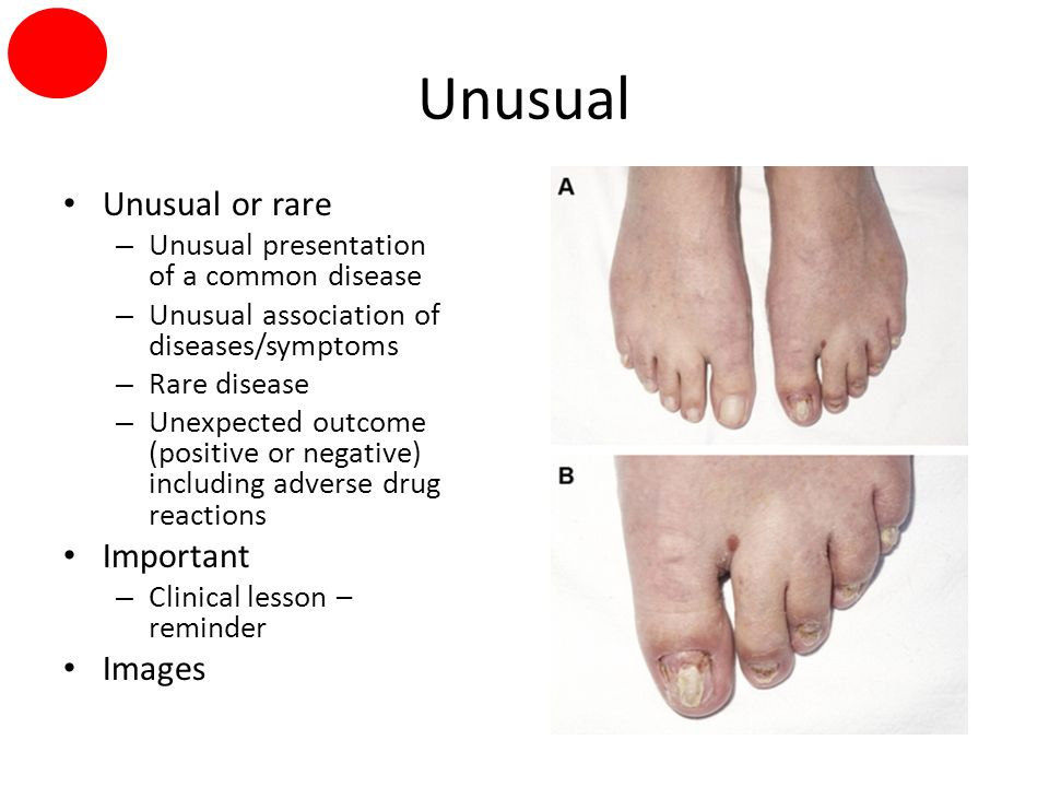 Unusual Unusual or rare – Unusual presentation of a common disease – Unusual association of diseases/symptoms – Rare disease – Unexpected outcome (positive or negative) including adverse drug reactions Important – Clinical lesson – reminder Images