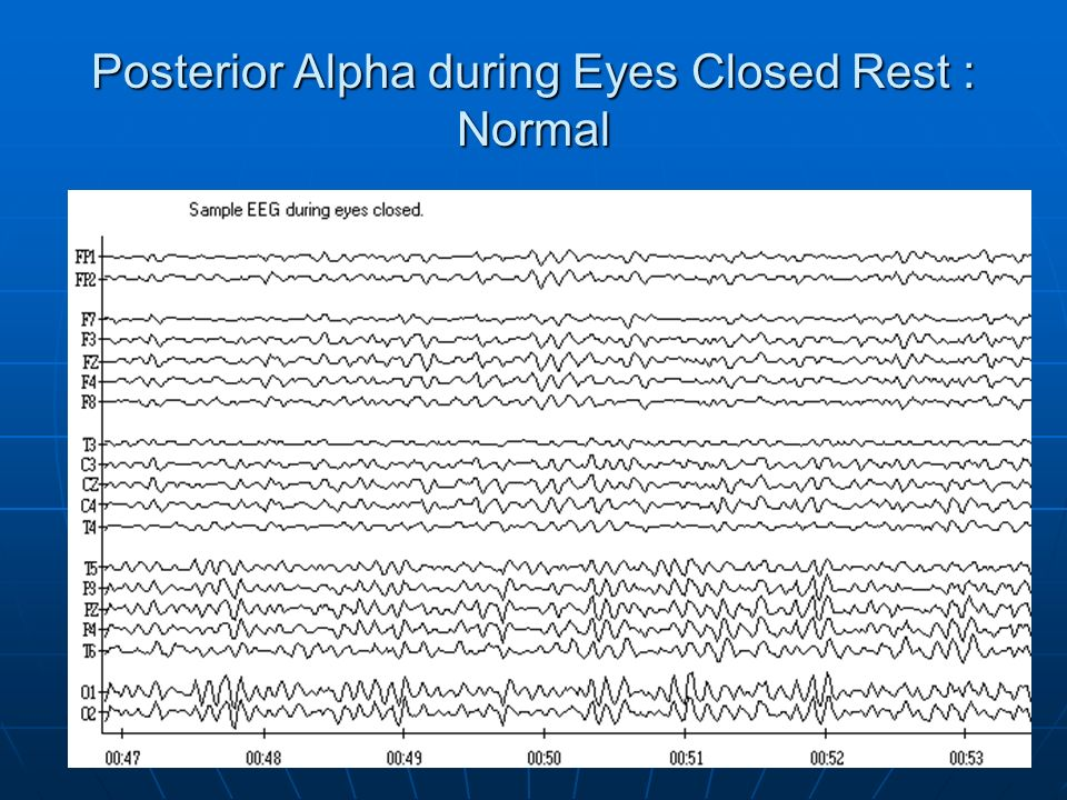 Posterior Alpha during Eyes Closed Rest : Normal