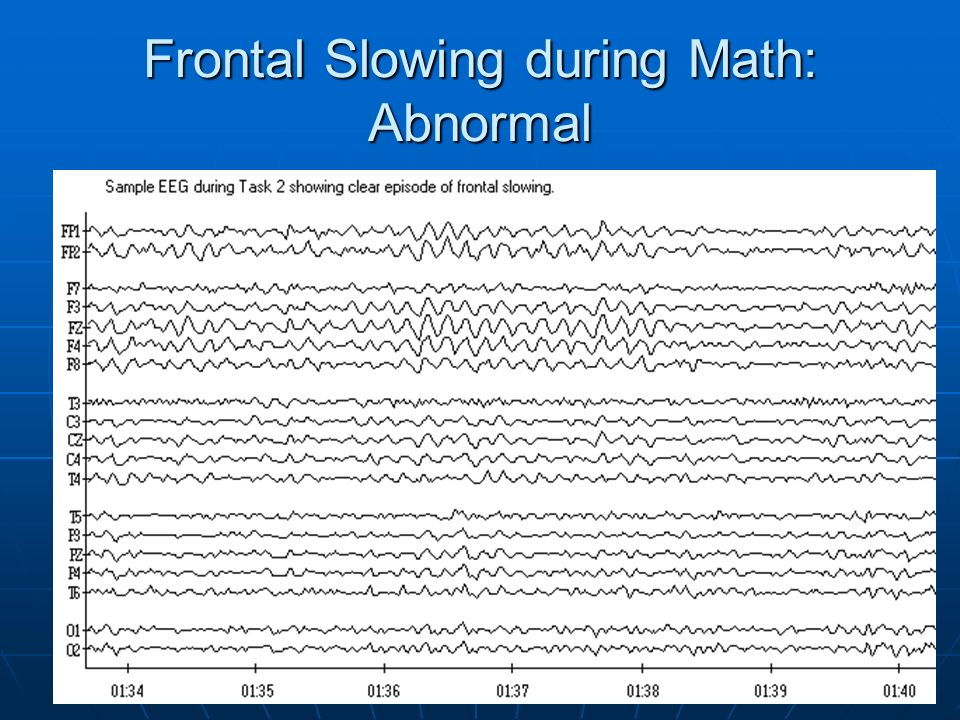 Frontal Slowing during Math: Abnormal