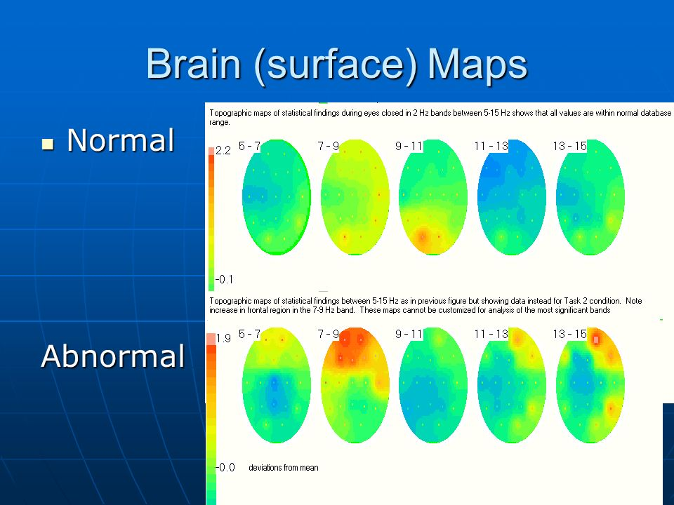 Brain (surface) Maps Normal NormalAbnormal