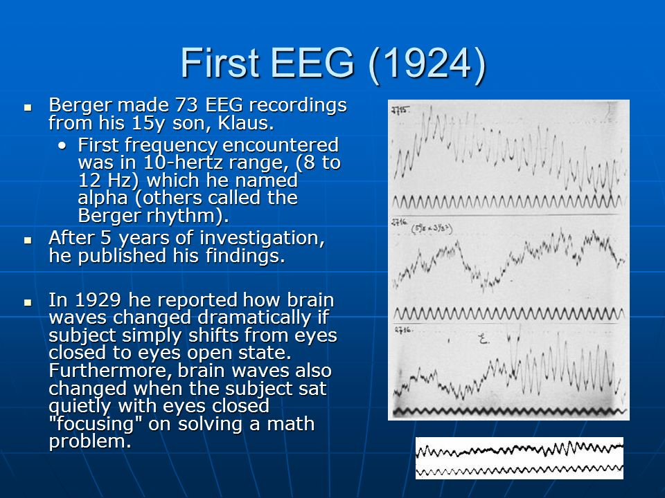 First EEG (1924) Berger made 73 EEG recordings from his 15y son, Klaus. Berger made 73 EEG recordings from his 15y son, Klaus. First frequency encount