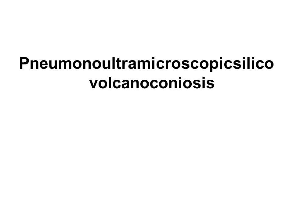 Pneumonoultramicroscopicsilico volcanoconiosis