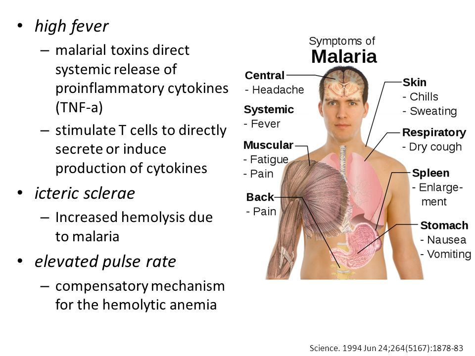 high fever – malarial toxins direct systemic release of proinflammatory cytokines (TNF-a) – stimulate T cells to directly secrete or induce production of cytokines icteric sclerae – Increased hemolysis due to malaria elevated pulse rate – compensatory mechanism for the hemolytic anemia Science.