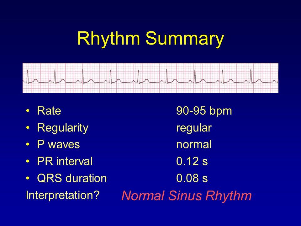 Rhythm Summary Rate90-95 bpm Regularityregular P wavesnormal PR interval0.12 s QRS duration0.08 s Interpretation? Normal Sinus Rhythm