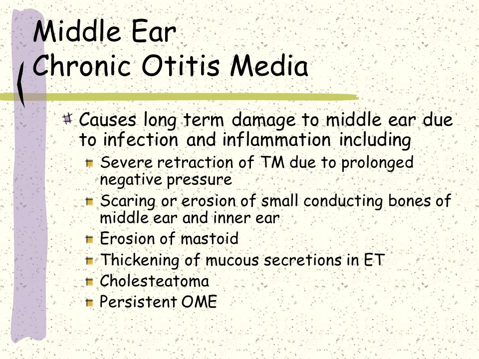 Middle Ear Chronic Otitis Media Causes long term damage to middle ear due to infection and inflammation including Severe retraction of TM due to prolo