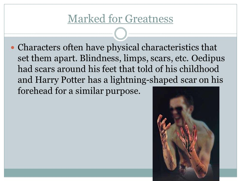 Marked for Greatness Characters often have physical characteristics that set them apart. Blindness, limps, scars, etc. Oedipus had scars around his fe