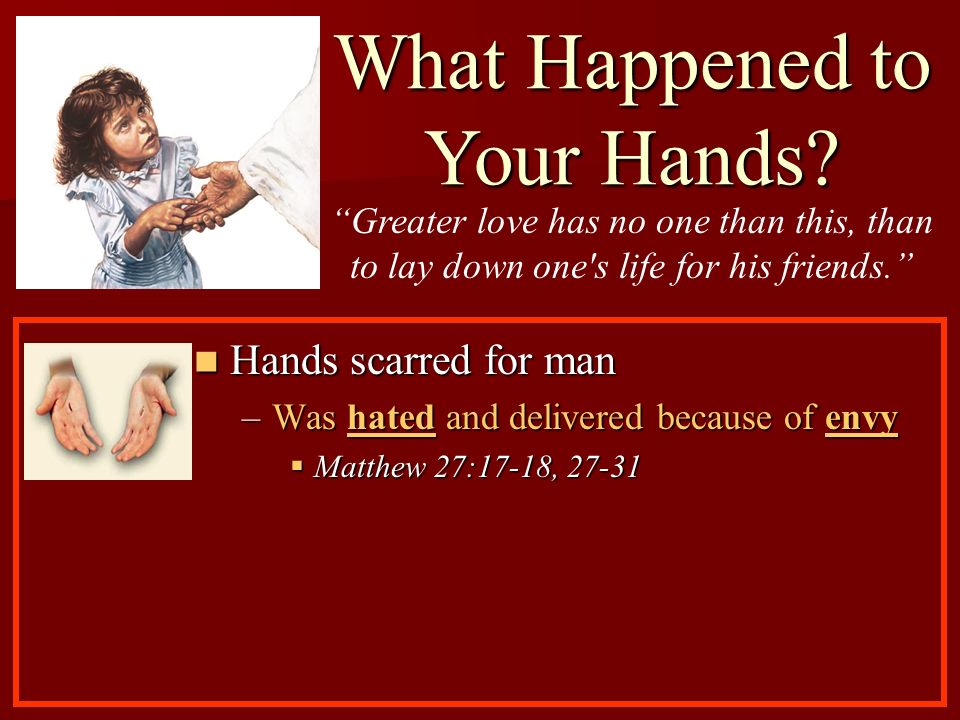 Hands scarred for man Hands scarred for man –Was hated and delivered because of envy Matthew 27:17-18, 27-31 Matthew 27:17-18, 27-31 What Happened to