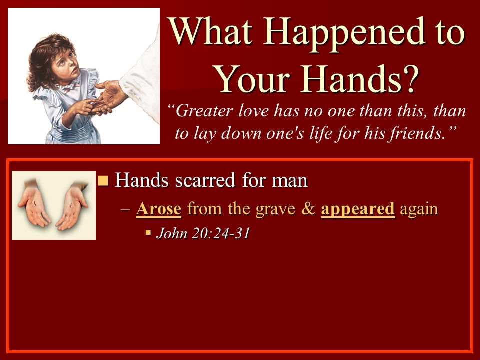 Hands scarred for man Hands scarred for man –Arose from the grave & appeared again John 20:24-31 John 20:24-31 What Happened to Your Hands? Greater lo