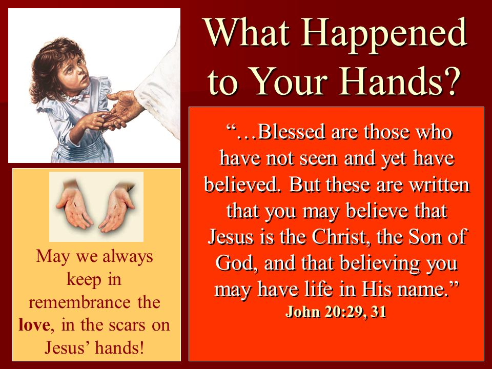 What Happened to Your Hands? …Blessed are those who have not seen and yet have believed. But these are written that you may believe that Jesus is the