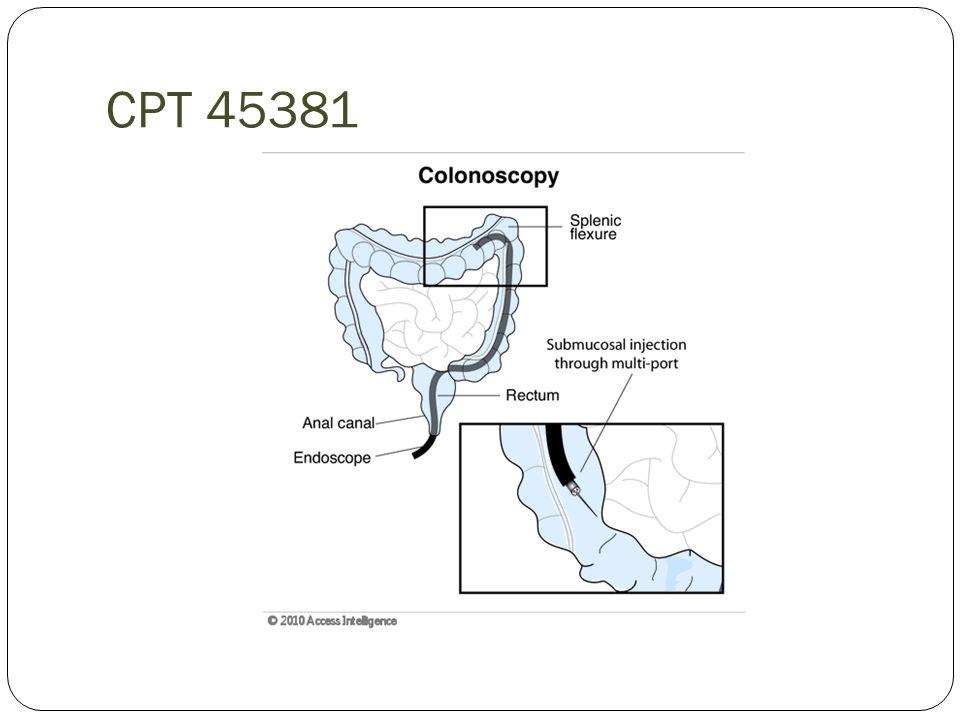 CPT 45381